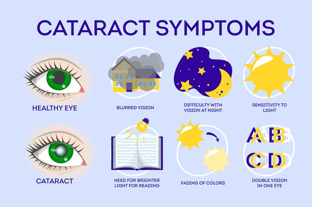 cataract surgery symptoms in Singapore